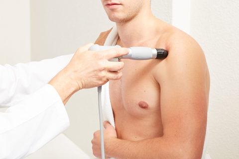 Laseroterapia punktowa